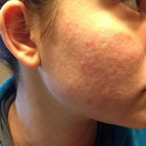 Clogged Pores are Bad for Skin