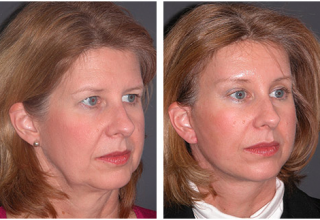 neck facelift